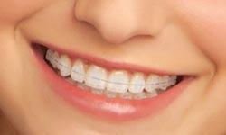 Types Of Braces Glk Orthodontics Rochester Mn